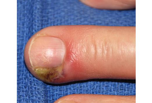 les Causes d'une Infection du Cuticule