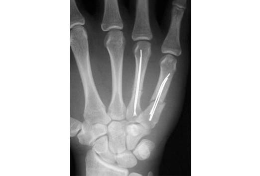 Plaies de la main medscape - Fracture main coup de poing ...
