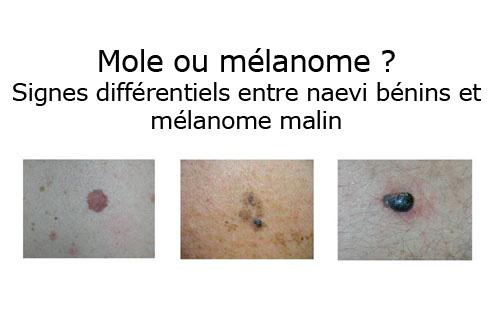 cancer de la peau bénin
